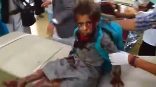 H1 yemen