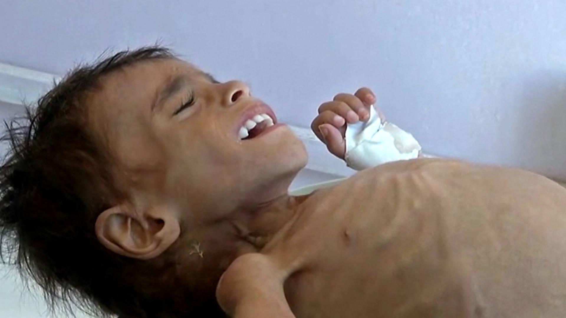 U.N.: A Yemeni Child Dies Every 10 Min. from War-Caused Disease, Hunger