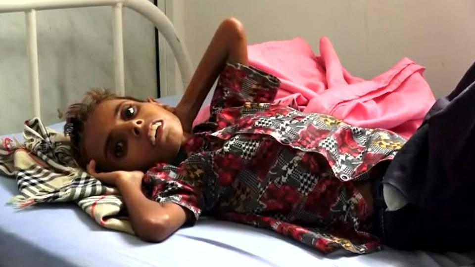 H11 yemen famine
