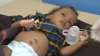 H3 yemen cholera f