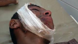 H3 yemen airstrike victim