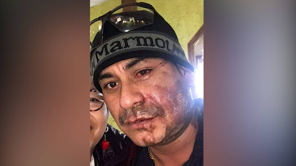 H14 milwaukee man arrested alleged anti immigrant acid attack peruvian mahud villalaz us citizen