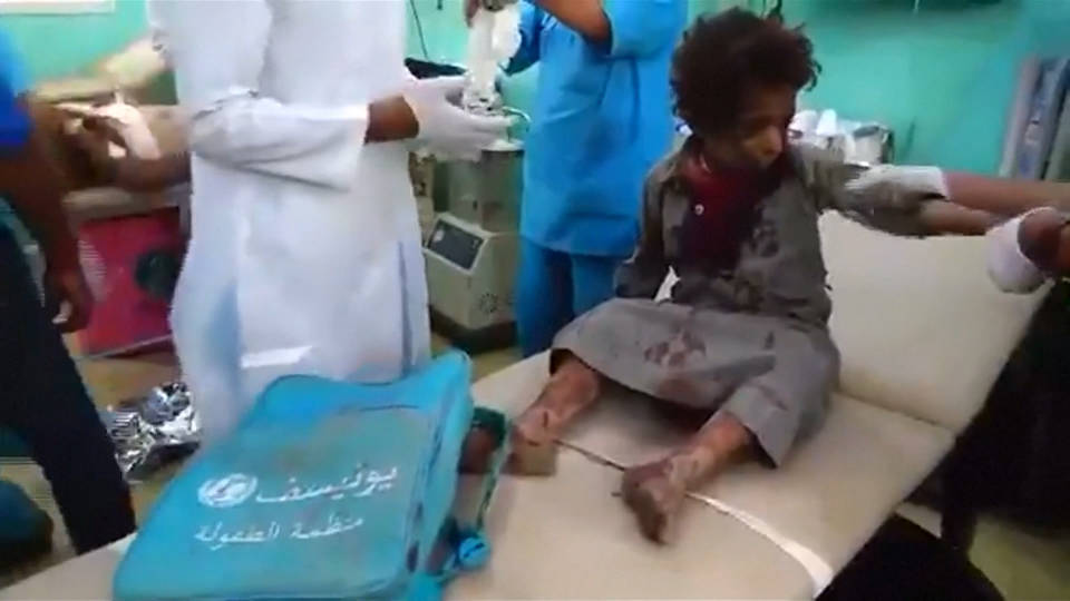 H7 yemeni bus bombing victim