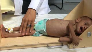 H5 yemen starving baby