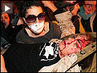 Iraq War Vet Hospitalized with Fractured Skull After Being Shot by Police at Occupy Oakland Protest