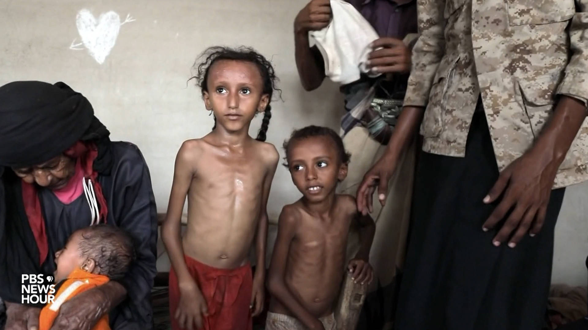 democracynow.org - PBS Report from Yemen: As Millions Face Starvation, American-Made Bombs Are Killing Civilians