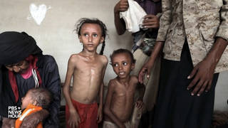 Seg2 yemen children famine