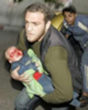 Gazachildweb