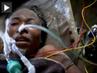 Injured-haiti