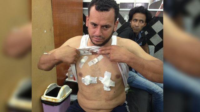Morsi protestor attack2