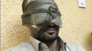 Iraq torture