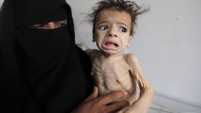 s2 yemen famine