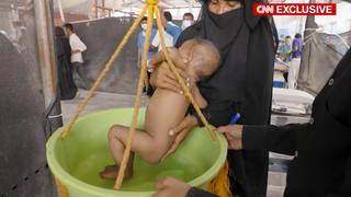 Seg2 yemen